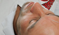 acupuntura-para-atletas+zen-qi