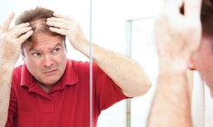 seus-cabelos-de-volta+clinicabelo