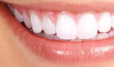 sorriso-milimetricamente-perfeito+adriane-paglia