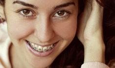 um-sorriso-bonito-significa-mais-do-cuidados-com-a-estetica eurides-gurkewicz