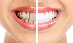 dentes+clareamento+odontologia-estetica+adriane-paglia_