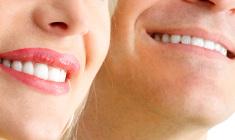 lentes-de-contato-dental+odontologia-estetica+adriane-paglia_