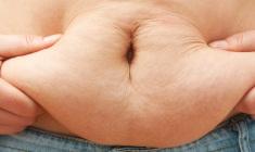 obesidade-morbida+cirurgia-bariatrica+dr-paulo-nassif_