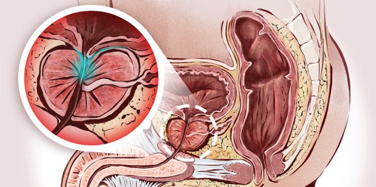 prostata-o-que-fazer-para-evitar-o-pior+mark-neumaier