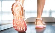 dores-e- alteracoes-posturais+pisada-ideal