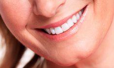 sorriso-em-mais-harmonia-com-o-rosto+dra-maria-bibiana-grassi